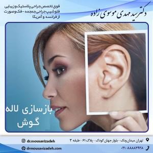 بازسازی لاله گوش