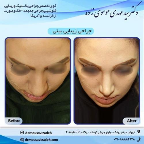 جراحی-بینی-8