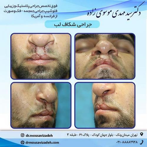جراحی-شکاف-لب-1